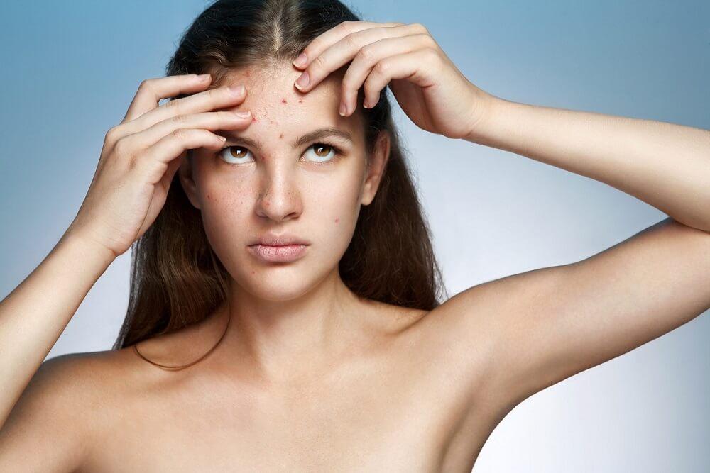 kobieta z trądzikiem przed laseroterapią