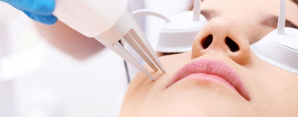 laserowe ujędrnianie okolic ust